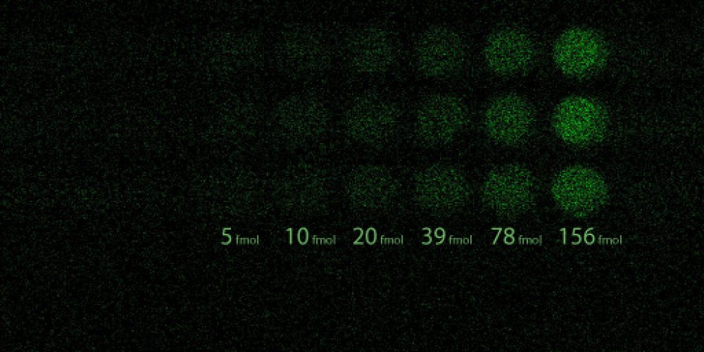 PHOT'Innov-L'interet d'une caméra EMCCD en fluorescence et bioluminescence