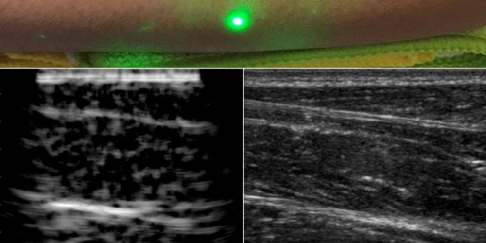 PHOT'Innov-Le CND par ultrason laser