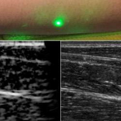 Le CND par ultrason laser